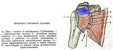 Операции на клювовидном отростке