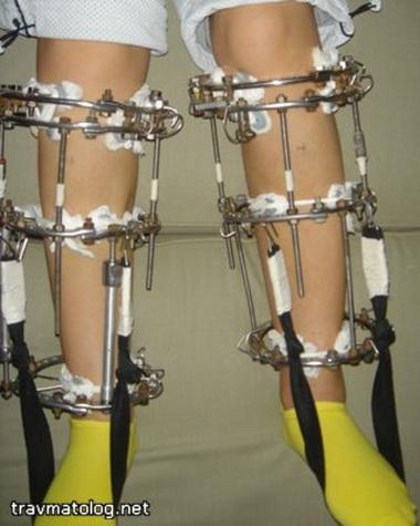 отек при переломе ноги в аппарате илизарова ищу девушку