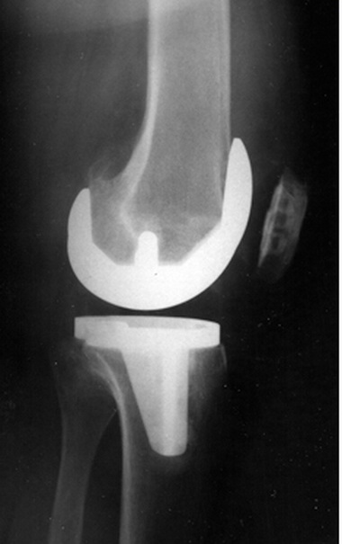 Эндопротезирование коленного сустава рентген