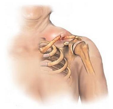 Инфекционный процесс на плече