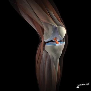 Эндопротезирование крупных суставов конечностей