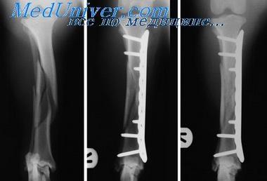 Операция ложных суставов