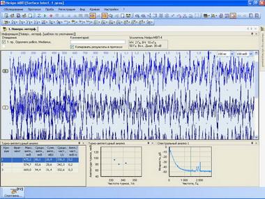 Биологическая обратная связь по параметрам ЭМГ