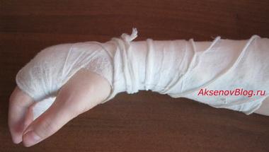 Переломы плечевой кости в