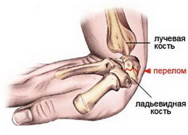 Перелом костей предплечья в нижней трети диафиза