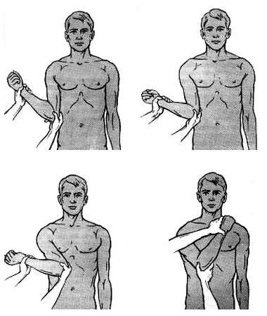 Способы вправления вывихов плеча