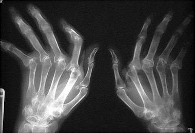 Ревматоидный артрит, спондилоартропатии